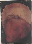 Fegato e diaframma