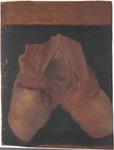 Blocco comprendente monconi delle coscie umane con evidenza della piccola pelvi e delle fosse iliache