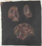 Particolari dell'orbita destra e dello scheletro facciale