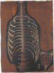 Colonna vertebrale, coste, osso sacro e vertebre coccigee