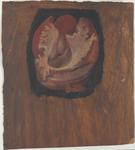 Ventricolo laterale di destra con forame interventricolare