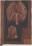 Parti del cervello con i ventricoli laterali aperti