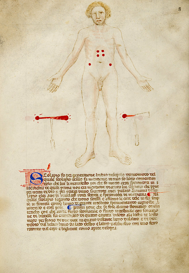 A page of 'De cauteriis'